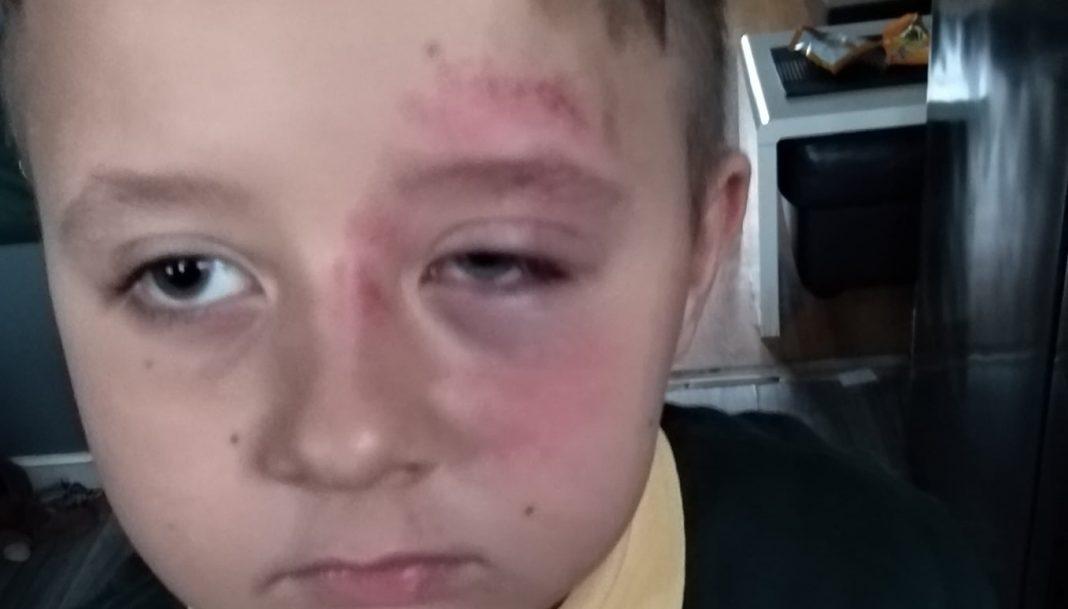 propolski.pl: Gabryś pobity w szkole